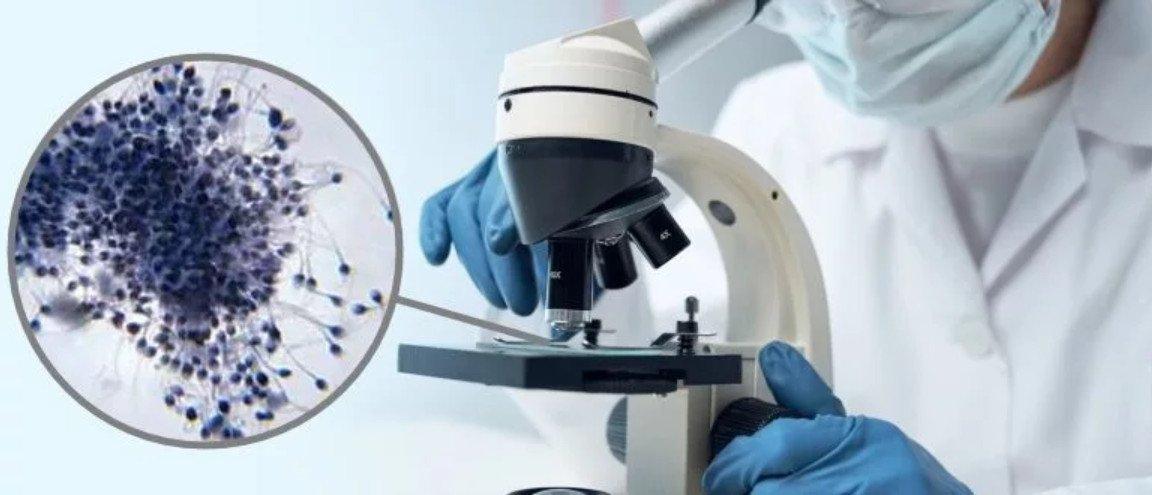 Как выглядит сперма под микроскопом
