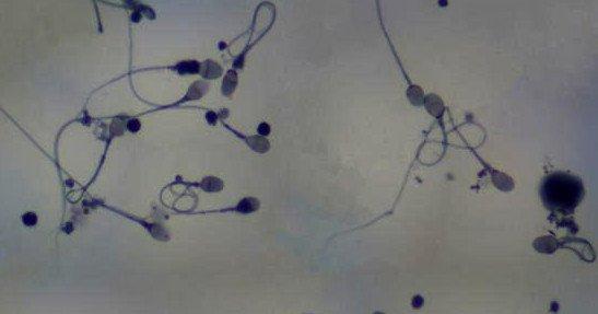 почему сперма как вода