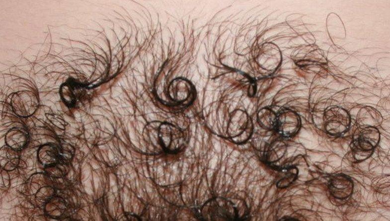 сколько растут волосы на лобке